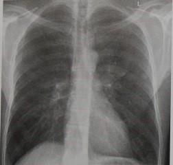 Снимки МРТ и КТ. Солитарный узелок