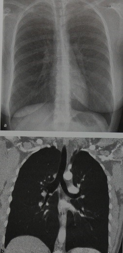 Снимки МРТ и КТ. Карциноид бронхов