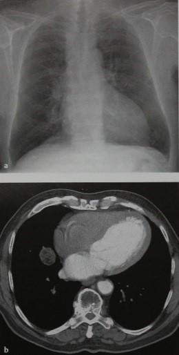 Снимки МРТ и КТ. Гамартома легкого