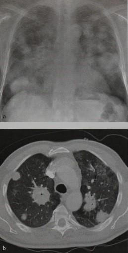 Снимки МРТ и КТ. Лимфома легкого