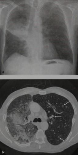 Снимки МРТ и КТ.  Бронхиолоальвеолярный  (альвеолярно-клеточный) ра