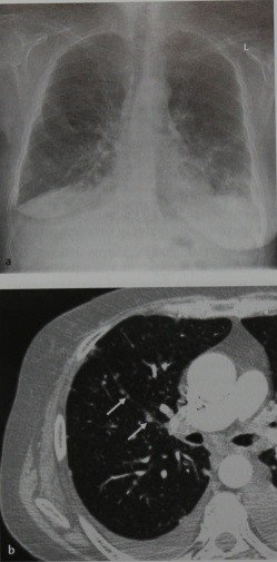 Снимки МРТ и КТ. Раковый лимфангиит