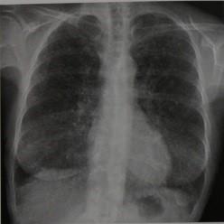 Снимки МРТ и КТ. Метастазы в легкие