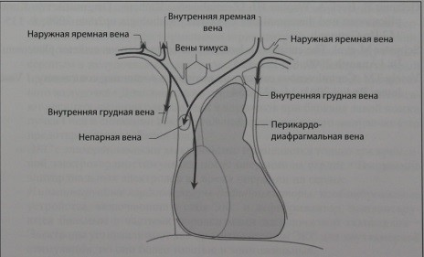 Снимки МРТ и КТ. Центральный венозный катетер