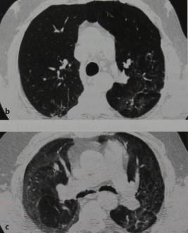 Снимки МРТ и КТ. Синдром облитерирующего бронхиолита