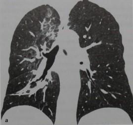 Снимки МРТ и КТ. Осложнения лучевой терапии