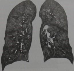 Снимки МРТ и КТ. Обызвествление легочной паренхимы и кальцификация