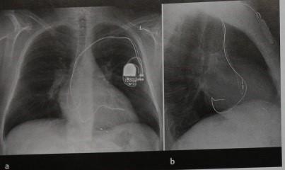 Снимки МРТ и КТ. Имплантированный электрокардиостимулятор