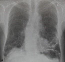 Снимки МРТ и КТ. Лекарственная реакция