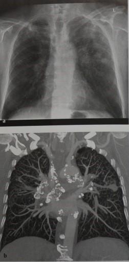Снимки МРТ и КТ. Пневмокониоз