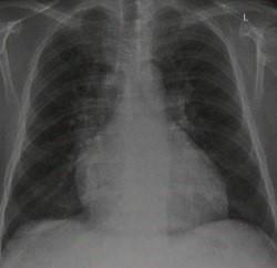 Снимки МРТ и КТ. Застой в легких