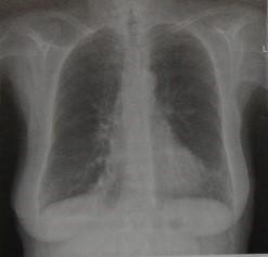 Снимки МРТ и КТ.  Интерстициальный отек легких
