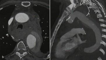 Снимки МРТ и КТ. Расслоение аорты - средостение