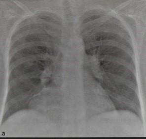 Снимки МРТ и КТ. Первичные кисты средостения