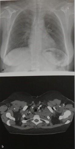 Снимки МРТ и КТ. Нейрогенные опухоли