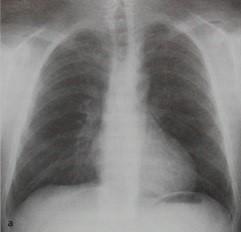 Снимки МРТ и КТ. Коарктация аорты - средостение