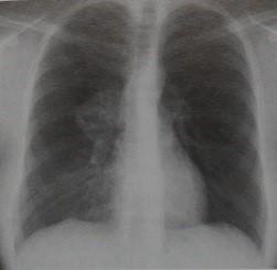 Снимки МРТ и КТ. Болезнь Кастлемана