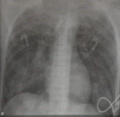Снимки МРТ и КТ. Ушиб и разрыв легкого