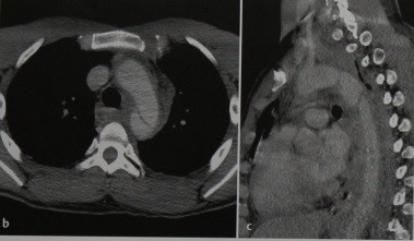 Снимки МРТ и КТ. Разрыв аорты