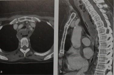 Снимки МРТ и КТ. Разрыв пищевода