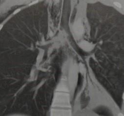 Снимки МРТ и КТ. Разрыв бронха