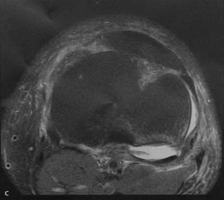 Снимки МРТ и КТ. Разрыв крестообразной связки