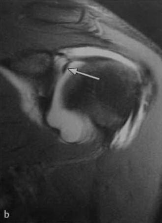 Снимки МРТ и КТ. Повреждения суставной губы плечевого сустава