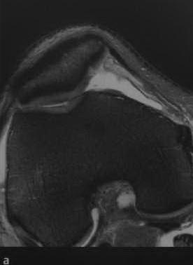 Повреждения хряща коленного сустава
