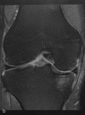 Снимки МРТ и КТ. Повреждения хряща коленного сустава