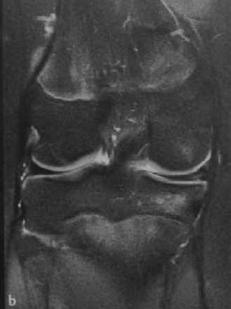 Снимки МРТ и КТ. Повреждения менисков