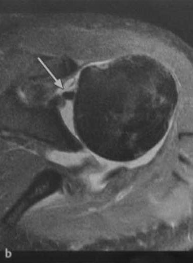 Снимки МРТ и КТ. Повреждения вращательной манжеты плеча