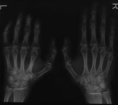 Снимки МРТ и КТ. Сочетанный регионарный болевой синдром