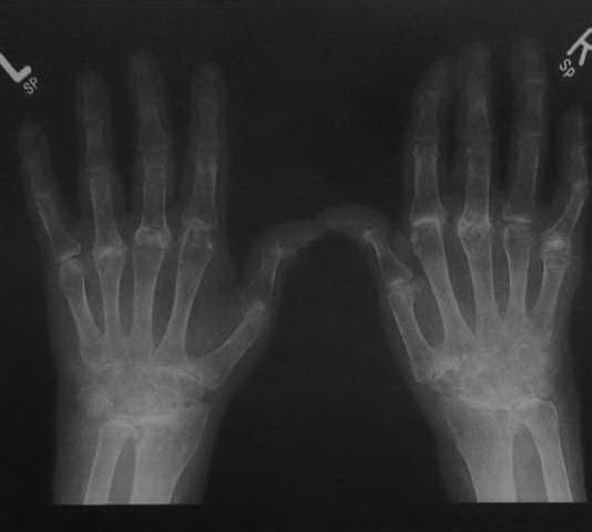 Ревматоидный артрит - болезнь Стила