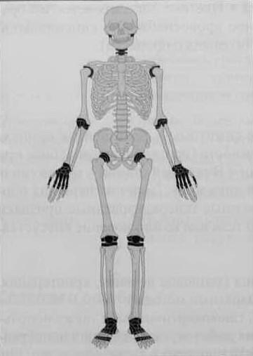Снимки МРТ и КТ. Ревматоидный артрит - болезнь Стила