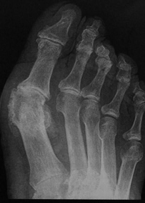 Снимки МРТ и КТ. Подагра