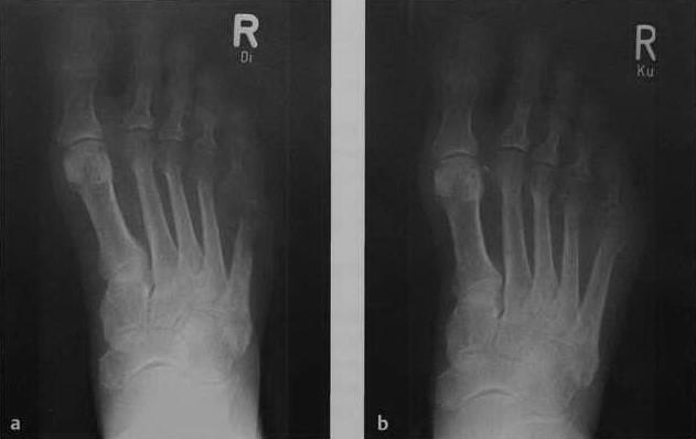 Снимки МРТ и КТ. Остеомиелит