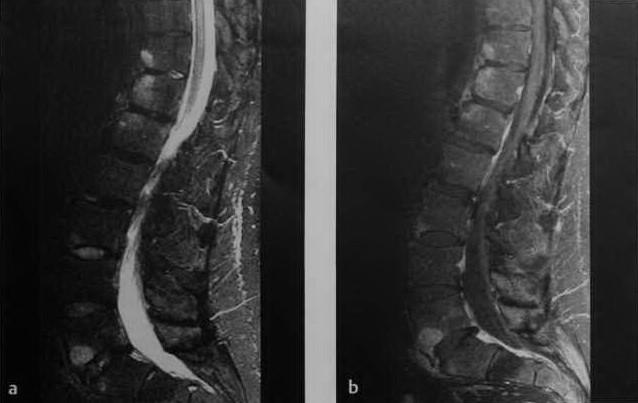Снимки МРТ и КТ. Анкилозирующий спондилит - болезнь Бехтерева