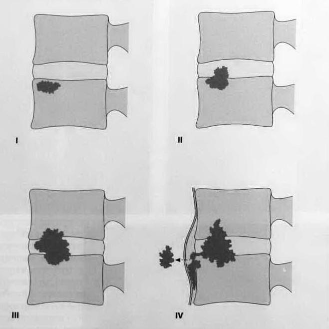 Снимки МРТ и КТ. Спондилит и спондилодисцит