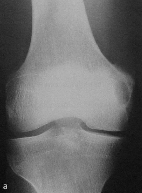 Снимки МРТ и КТ. Абсцесс Броди