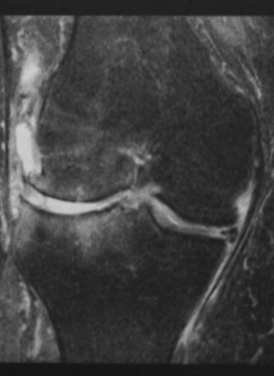 Снимки МРТ и КТ. Остеоартрит