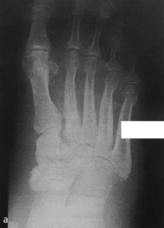 Снимки МРТ и КТ. Нейропатическая остеоартропатия
