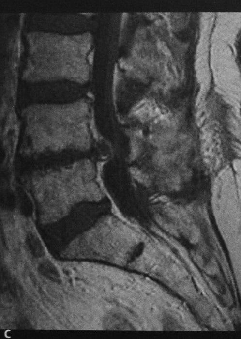 Снимки МРТ и КТ. Грыжа межпозвонкового диска