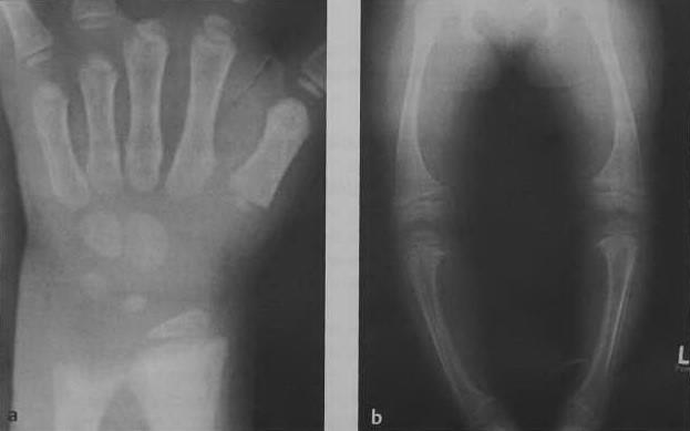 Снимки МРТ и КТ. Рахит-авитаминоз D