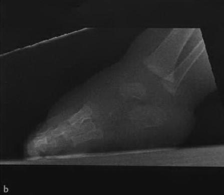 Снимки МРТ и КТ. Косолапость