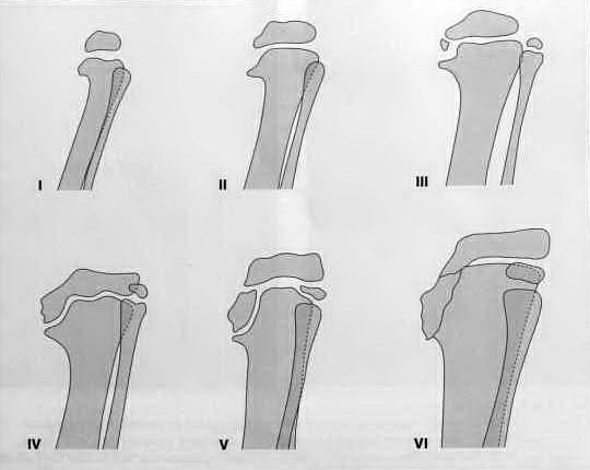 Снимки МРТ и КТ. Варусная деформация голени (болезнь Бланта)