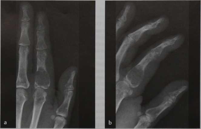 Снимки МРТ и КТ. Энхондрома
