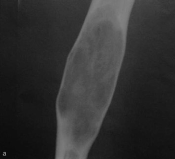 Снимки МРТ и КТ. Фиброзная дисплазия - болезнь Брайцева