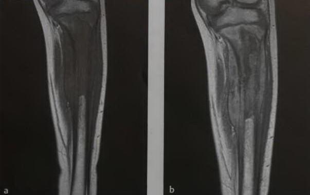 Снимки МРТ и КТ. Саркома Юинга ортопедия