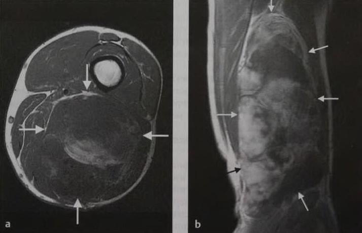 Снимки МРТ и КТ. Саркома мягких тканей