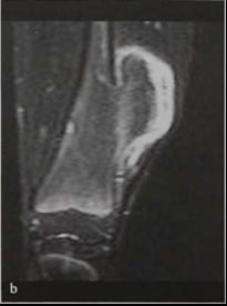 Снимки МРТ и КТ. Остеохондрома